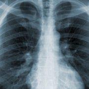 Photo of mesothelioma X-ray